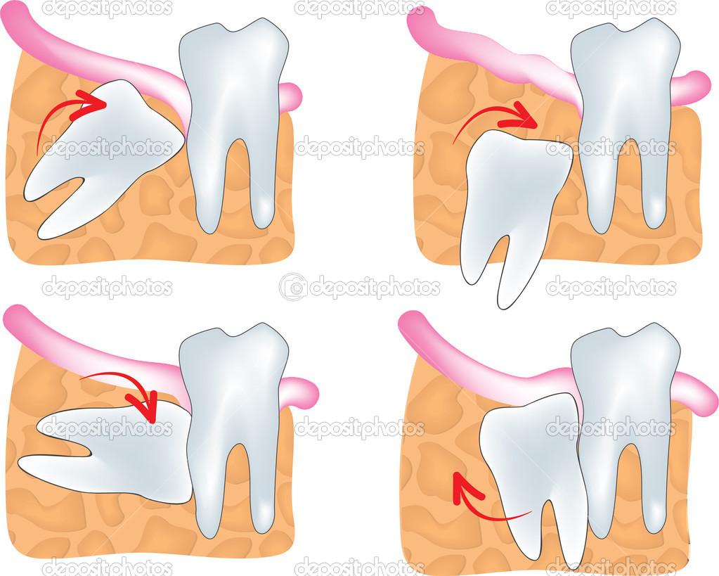 Mọc lệch răng khôn có nên nhổ bỏ hay không