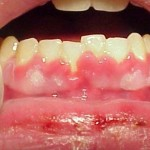 Viêm nướu răng uống thuốc gì để trị TẬN GỐC nhanh chóng nhất