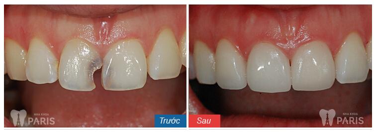 """Bị sâu răng phải làm sao? Điều trị """"Tại Nhà"""" có HIỆU QUẢ không? 4"""