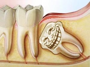 Nhổ răng khôn an toàn và không gây đau đớn tại Nha khoa Paris