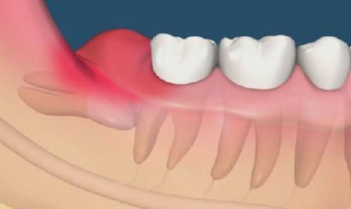 Quá trình mọc răng khôn