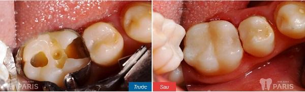 Những cách chữa bệnh sâu răng tốt nhất hiện nay 4