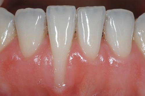 """Cách chữa răng bị tụt lợi """"Tại Nhà"""" Điều trị AN TOÀN & HIỆU QUẢ nhất 4"""