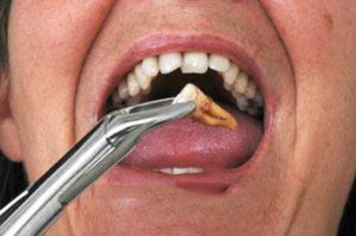 Nhổ răng cấm khi răng bị sâu an toàn nhất  - Nha  khoa Paris 1