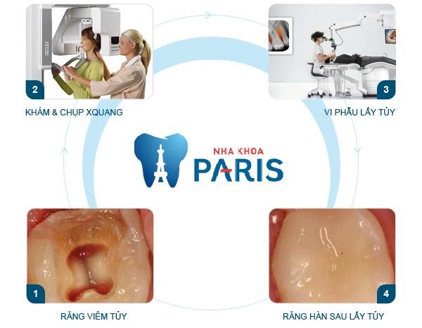 Quy trình điều trị tủy răng an toàn nhất tại nha khoa Paris 2