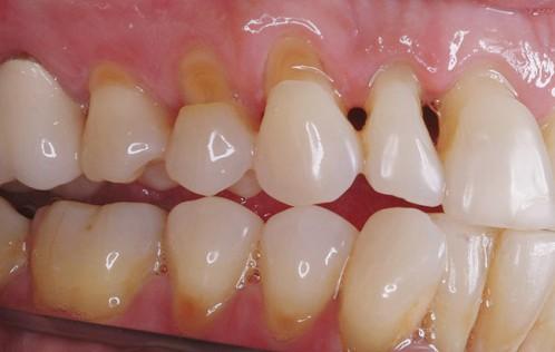 Kết quả hình ảnh cho Khi nướu chân răng của chúng ta bị lộ sẽ tạo