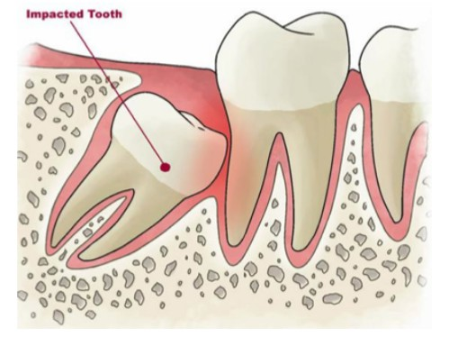 Tuổi mọc răng khôn là khi nào và cần lưu ý những gì?