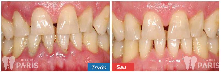 Viêm chân răng khi mang thai và cách điều trị triệt để 2