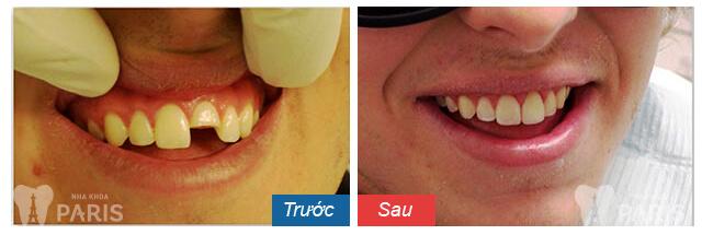 Răng cửa bị mẻ phải làm sao để khắc phục TRIỆT ĐỂ nhất 3