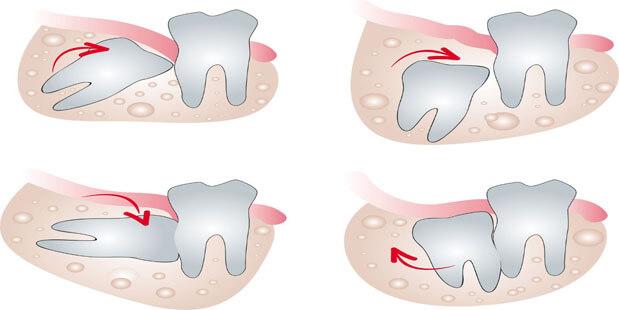 Nhổ răng khôn hàm dưới có nguy hiểm không? 2