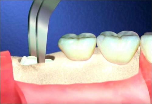 Nhổ răng khôn hàm dưới có nguy hiểm không? 3