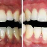 Nướu răng bị thâm đen là biểu hiện của bệnh gì?