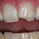 Răng cửa bị mẻ phải làm sao để khắc phục TRIỆT ĐỂ nhất