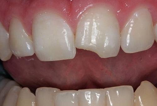 Răng cửa bị mẻ phải làm sao để khắc phục TRIỆT ĐỂ nhất 1