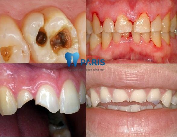 Tại sao lại bị nhức răng khi ăn đồ ngọt và cách chữa triệt để 2