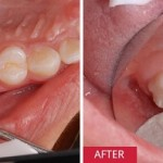 Quy trình lấy tủy răng đạt tiêu chuẩn quốc tế – NK Paris
