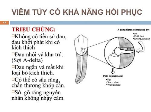 Những triệu chứng viêm tủy răng dễ nhận biết nhất 2
