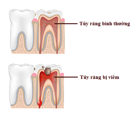 Những triệu chứng viêm tủy răng dễ nhận biết nhất 1