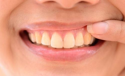 Một số mẹo chữa viêm chân răng cấp tốc tại nhà