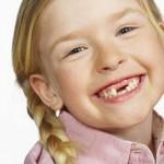 Một số cách chữa đau răng cho bé bạn nên tìm hiểu