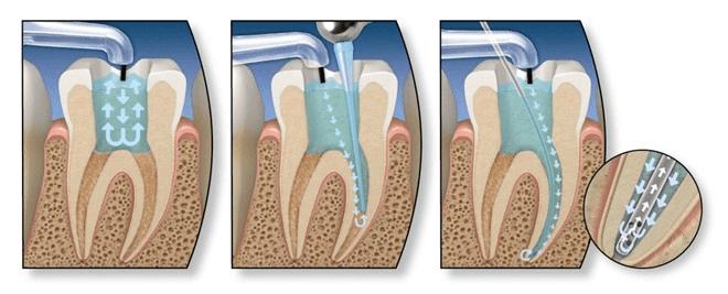 Đau răng ban đêm, chữa như thế nào? – Chuyên gia tư vấn 3