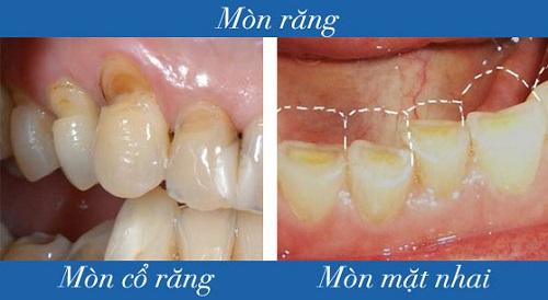 """Nguyên nhân và giải pháp điều trị """"Dứt Điểm"""" tại sao răng bị ê buốt 2"""