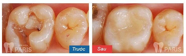 diệt tủy răng 13
