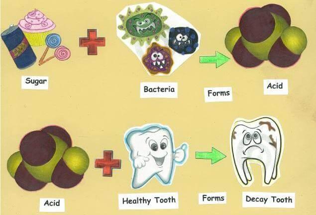 Những cách trị sâu răng tại nhà CỰC NHANH chỉ sau 5 phút 1
