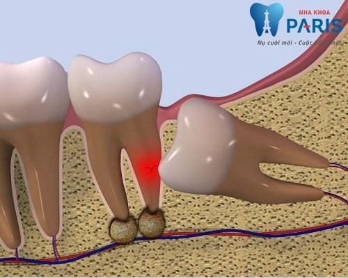 Cảnh báo: Những điều bạn CẦN PHẢI BIẾT về răng khôn mọc lệch