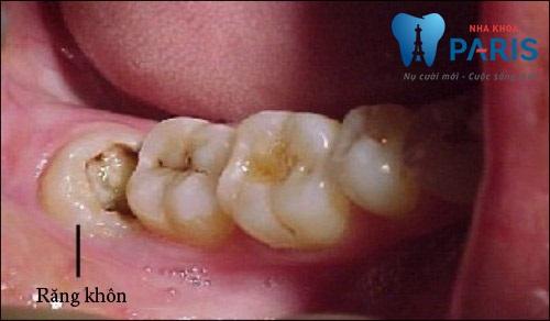 Cảnh báo: Những điều bạn CẦN PHẢI BIẾT về răng khôn mọc lệch 2