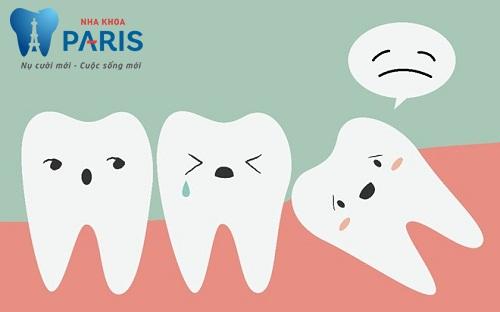 Cảnh báo: Những điều bạn CẦN PHẢI BIẾT về răng khôn mọc lệch 3