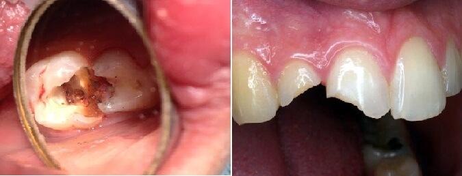Đau răng buốt lên đầu Ảnh Hưởng thần kinh phải làm sao? 2