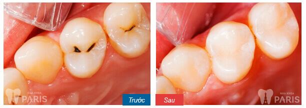 diệt tủy răng 2