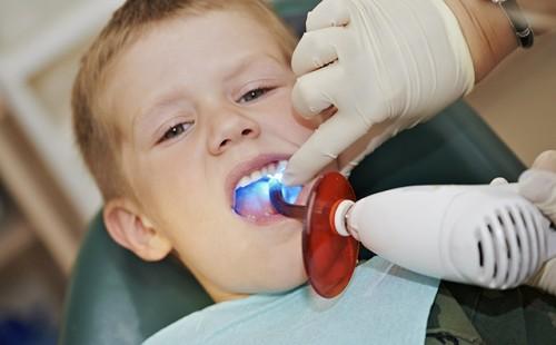 Sâu răng ở trẻ 4 tuổi nên làm gì là tốt nhất? 2