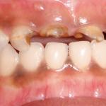 Sâu răng ở trẻ nhỏ, chớ nên coi thường!