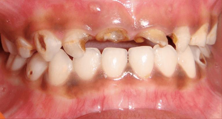 Sâu răng ở trẻ nhỏ, chớ nên coi thường! 1