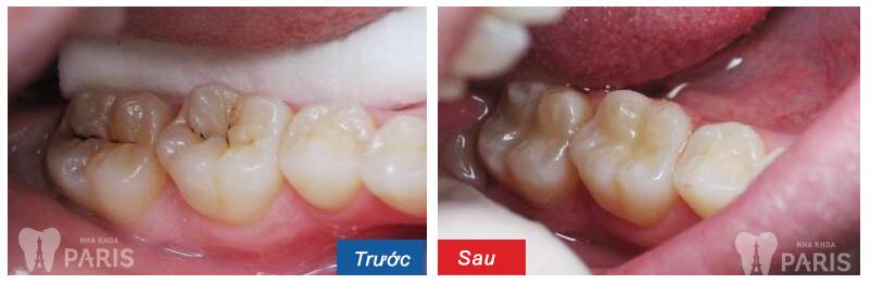 Chia sẻ thực tế từ khách hàng chữa đau răng tại Paris 2