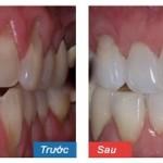 Chia sẻ thực tế từ khách hàng chữa đau răng tại Paris