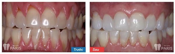 Chia sẻ thực tế từ khách hàng chữa đau răng tại Paris 1