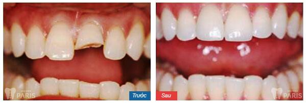 Chia sẻ thực tế từ khách hàng chữa đau răng tại Paris 3