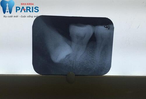 Chia sẻ thực tế từ khách hàng chữa đau răng tại Paris 4