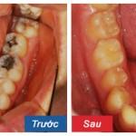 Răng hàm bị sâu có nên nhổ đi không? Bác sĩ tư vấn