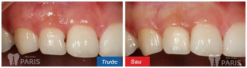 Đã tìm ra cách chữa răng cửa bị sâu đơn giản, tiết kiệm nhất 2