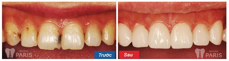 Đã tìm ra cách chữa răng cửa bị sâu đơn giản, tiết kiệm nhất 3