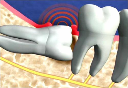 TOP 4 cách chữa viêm lợi chân răng cấp tốc bạn nên biết 2