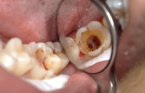 Răng hàm bị sâu có nên nhổ đi không? Bác sĩ tư vấn 1