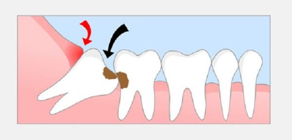 TOP 4 cách chữa viêm lợi chân răng cấp tốc bạn nên biết 1