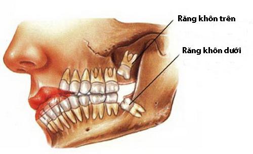 Răng khôn mọc lệch khiến bạn cảm thấy khó chịu