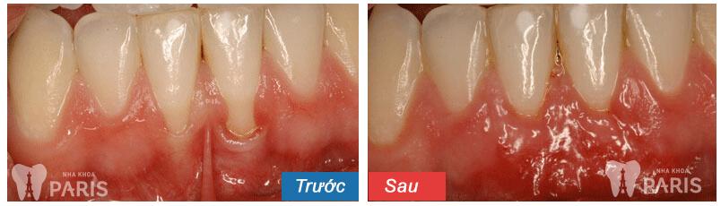 Nguyên nhân và cách hỗ trợ điều trị buốt răng khi ăn đồ ngọt 4