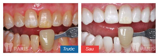 Đầy đủ các cách giảm ê buốt răng sau khi tẩy trắng triệt để 3